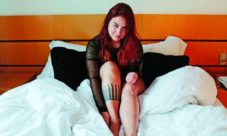 Mulher branca, ruiva, sentada em uma cama, sorrindo para a câmera. Ela não possui o antebraço esquerdo.